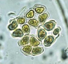 Crucigenia phytoplankton